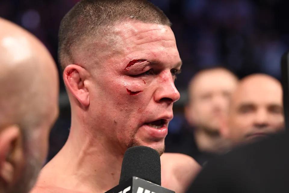 Phản ứng của Nate Diaz sau khi Francis Ngannou tự vấn chuyện lương bổng ở UFC